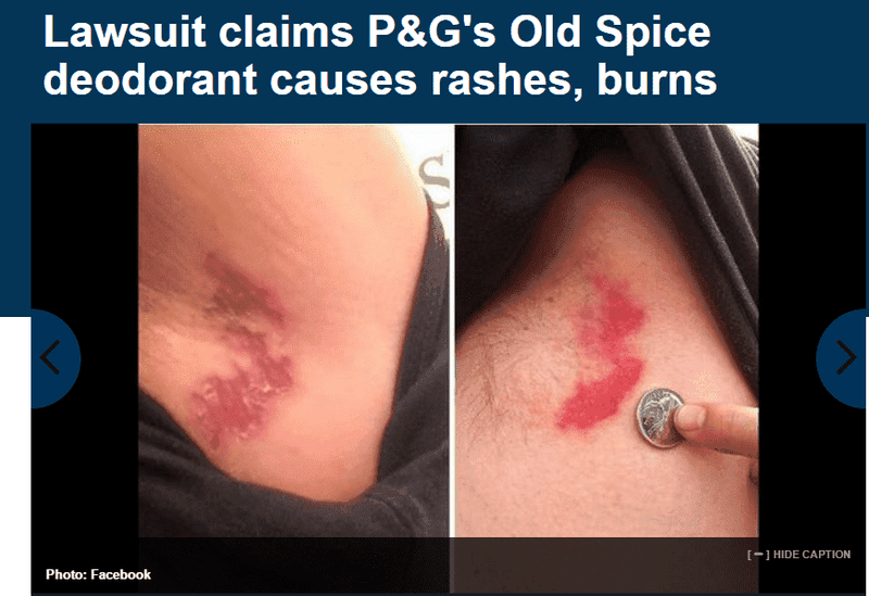 Class Action Claims Old Spice Deodorant Caused Severe Burns